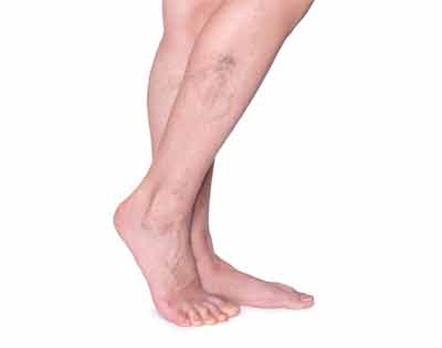 Disadvantages of varicose veins