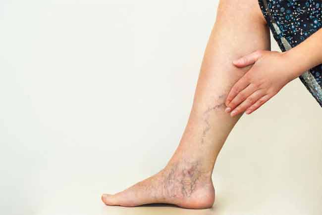 What are The Main Causes of Varicose Veins