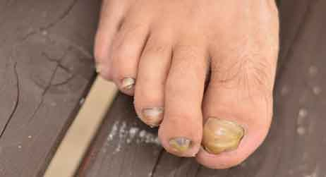 What Are The Symptoms Of Nail Fungus